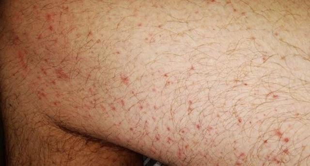 Yeni tip korona virüs salgını sadece solunum yollarını değil aynı zamanda cildi de etkiliyor. Kovid-19 ayak parmaklarından kafaya kadar insan derisinde bir takım semptomlara neden oluyor. Tespit edilen sekiz yaygın semptom bulunuyor. İşte yeni tip korona virüs nedeniyle cildinizde meydana gelebilecek değişiklikler;  MAKÜLOPAPÜLER KABARIKLIKLAR  Hastalarda en yaygın görülen Kovid-19'a bağlı cilt sorunlarının başında makülopapüler kabarıklıklar geliyor. Deri yüzeyinde küçük kırmızı noktalar şeklinde ortaya çıkıyor.