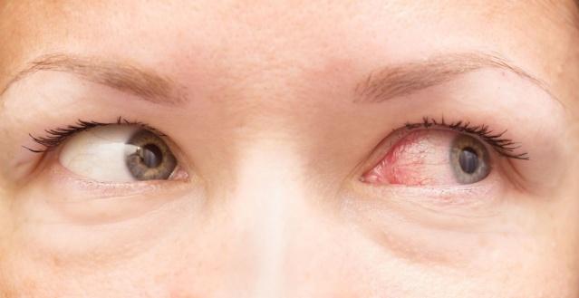 KIRMIZI GÖZLER  Konjunktivit olarak da adlandırılan kırmızı gözler korona virüse yakalanmış hastalarda görülen bir diğer sorun.