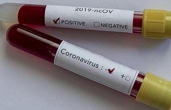 Guatemala'da koronavirüsten ilk ölüm