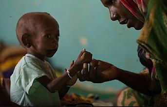 400 bin çocuk yetersiz beslenme riskiyle karşı karşıya