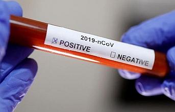 Dünya iyileşiyor: Koronavirüsü yenen kişi sayısı 2 milyon 303 bini aştı