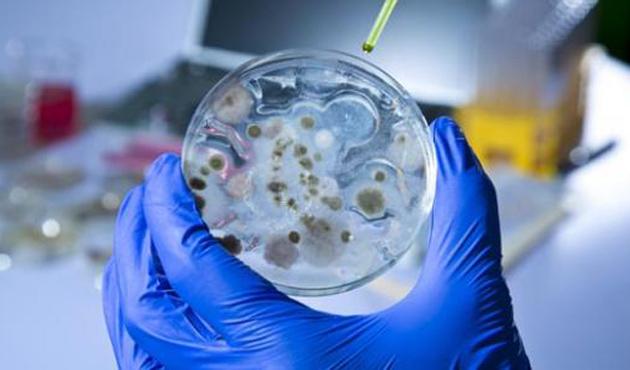 Ebola Avrupa'ya da ulaşabilir