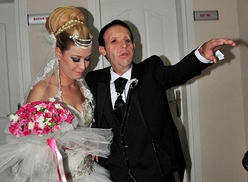 Türkiye'nin 5. yüz nakli yapılan Sert, evlendi