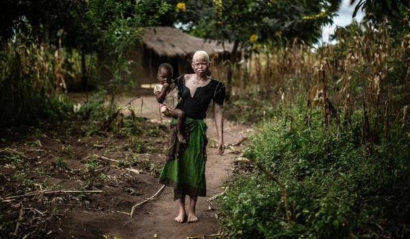 Tanzanya'da Albinolar güvenli adaya sığınıyor