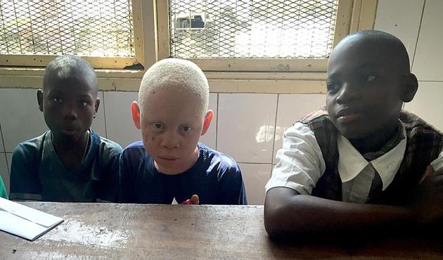 Afrika'daki albinoların zorlu hayat mücadelesi