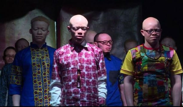 Kenya'da albino güzellik yarışması