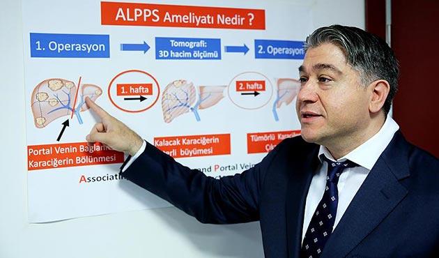Karaciğer kanseri hastalarına yeni tedavi yöntemi