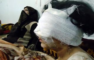 Humus'ta siviller boğazı kesilerek katledildi
