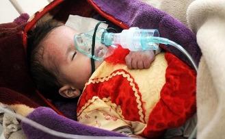 Yemen'deki kolera salgınında ölü sayısı 2 bin 300'ü aştı
