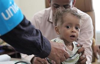 Yemen'de çocuklar toplu ölüm riski altında