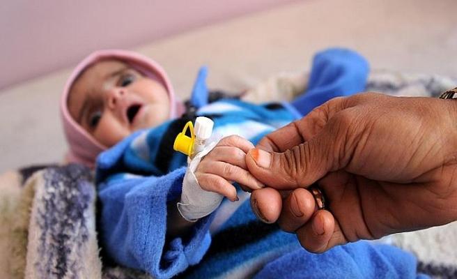 Yemen'de her 10 dakikada 1 çocuk ölüyor