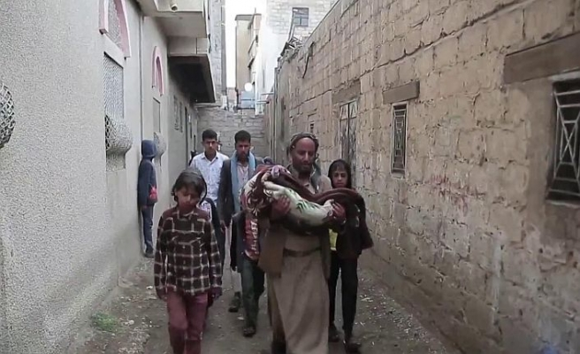 Açlıktan ölen çocuklarını izliyorlar
