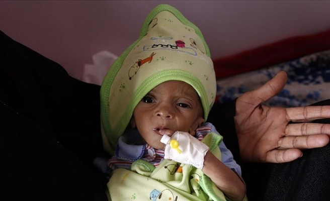 Yemen'de 98 bin çocuk ölüm riskiyle karşı karşıya