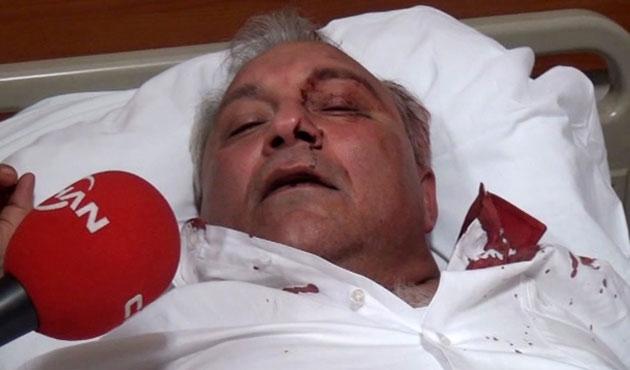 Sincan'da CHP'lilere taşlı sopalı saldırı