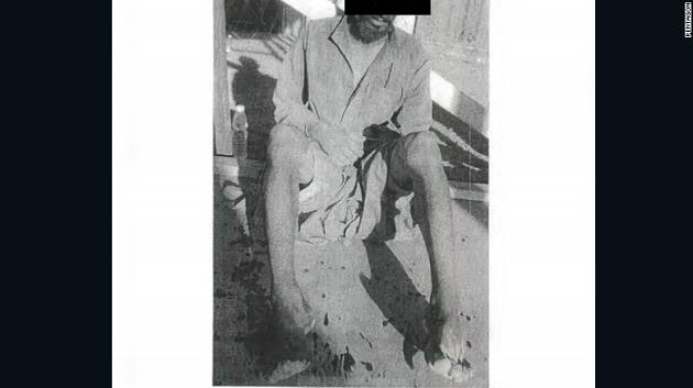 Pentagon işkence fotoğraflarını sonunda yayınladı!
