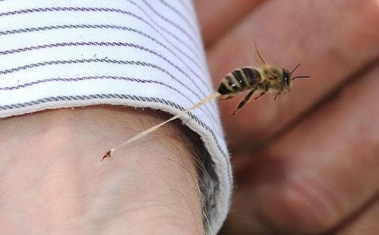 Yaz geldi, arı alerjisi olanlar dikkat