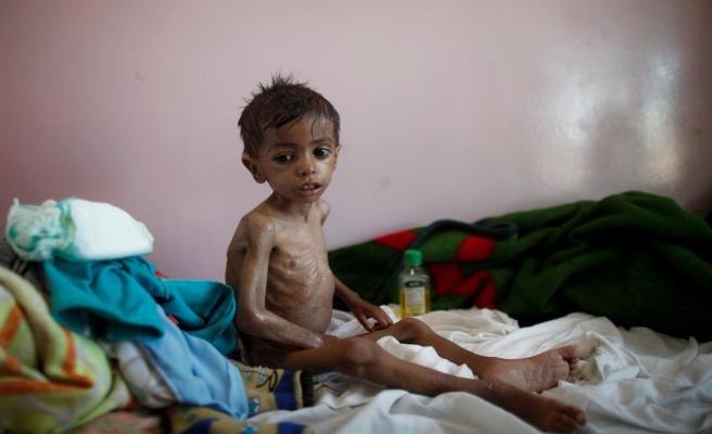 İç savaş Yemenlileri kıtlığa sürüklüyor