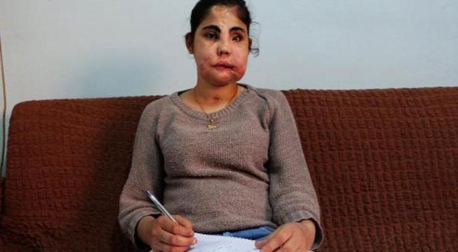 Türkiye'nin yüz nakli yapılan ilk kadını vefat etti