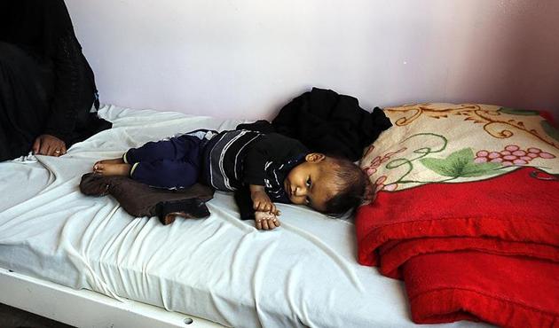 Yemen'deki kolera salgınında ölü sayısı bin 889'a yükseldi