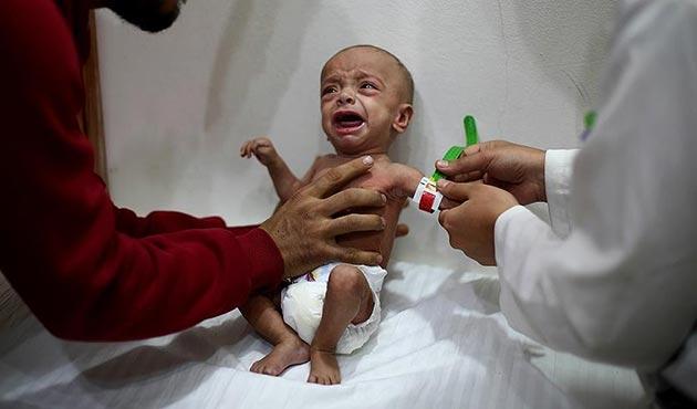 'Doğu Guta'da yetersiz beslenen çocukların sayısı ürkütücü boyutlarda'