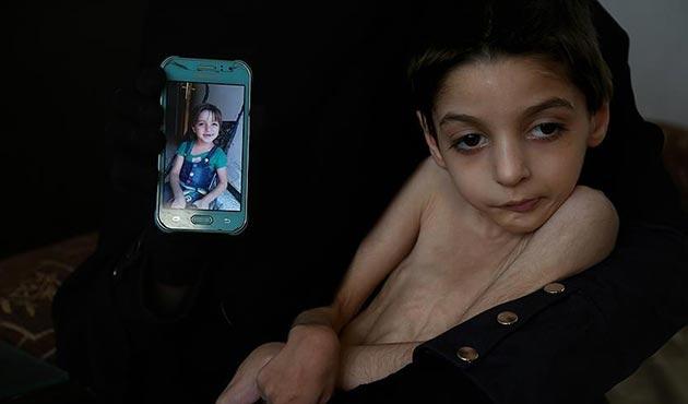 UNICEF'ten Doğu Guta için acil uyarı