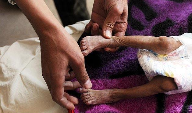 Yemen'deki difteri salgınında ölü sayısı artıyor